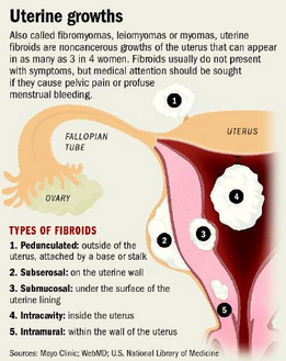 uterine fibroids signs and symptoms