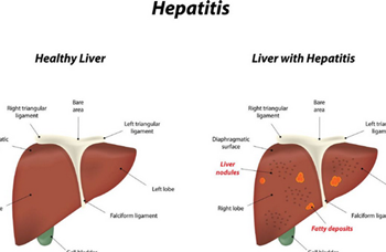 Picture of acute hepatitis infection