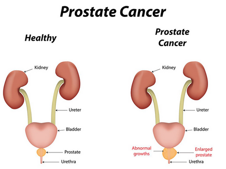 Picture of prostate cancer